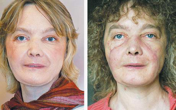 Isabelle Dinoire received the world's first full face transplant in 2005