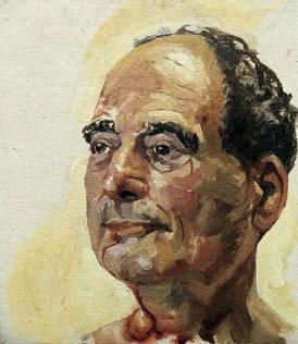 Painting of a man after facial surgery.